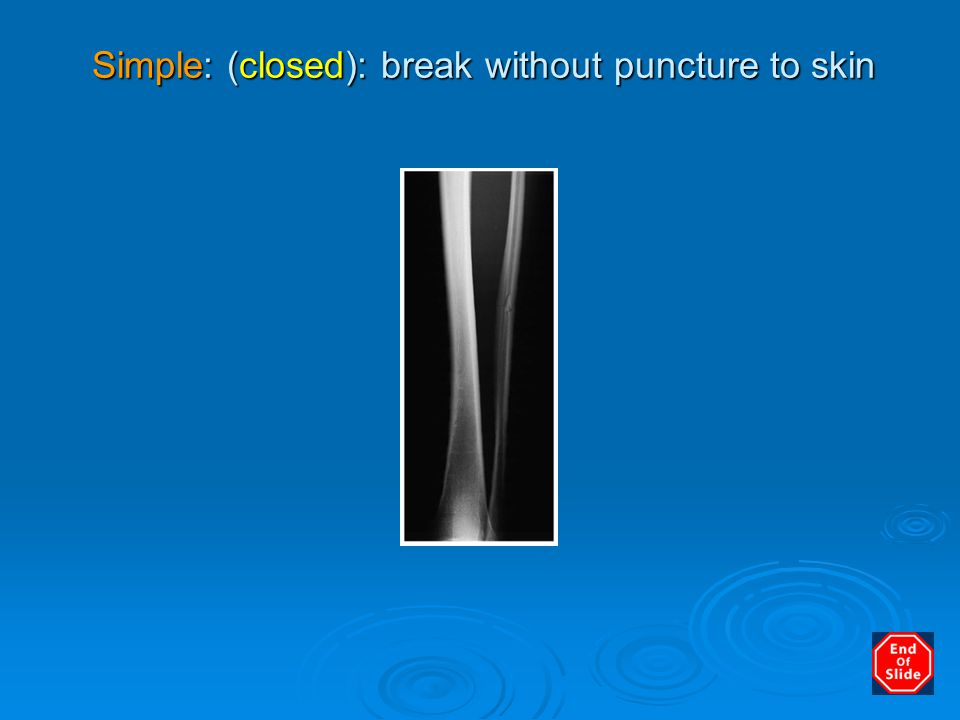 Simple: (closed): break without puncture to skin