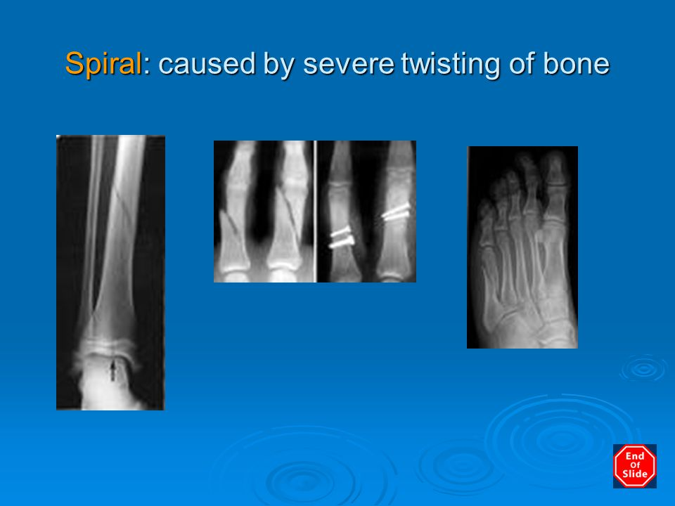 Spiral: caused by severe twisting of bone