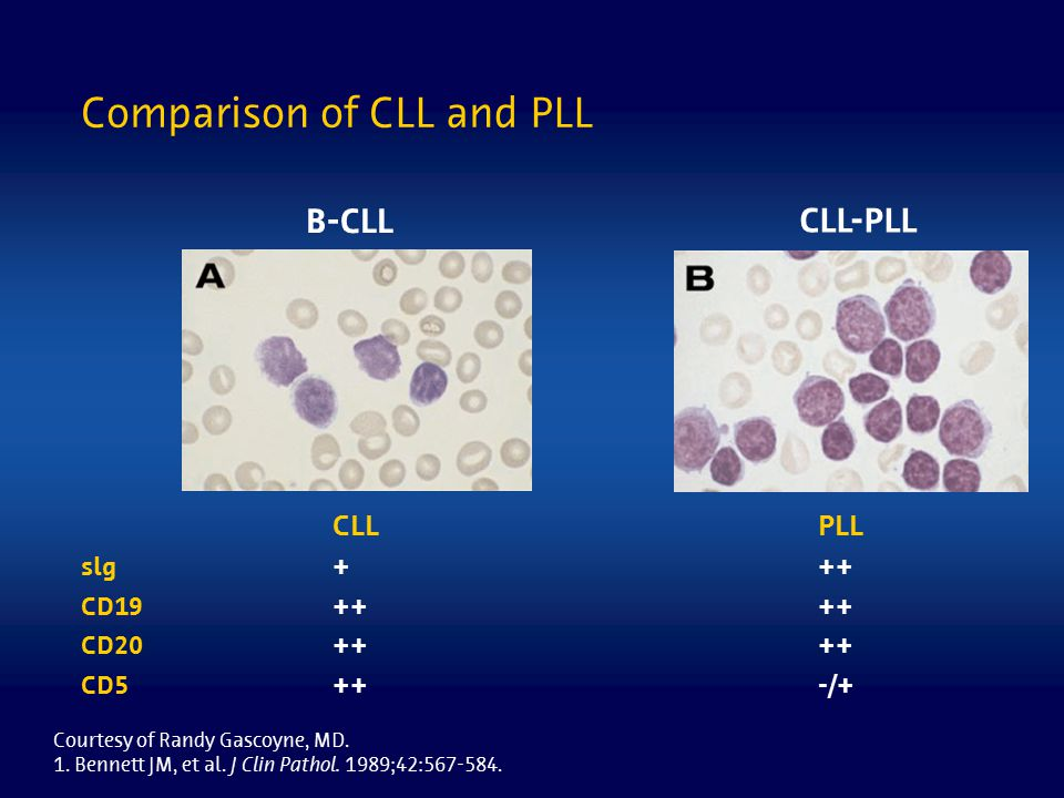 Comparison of CLL and PLL