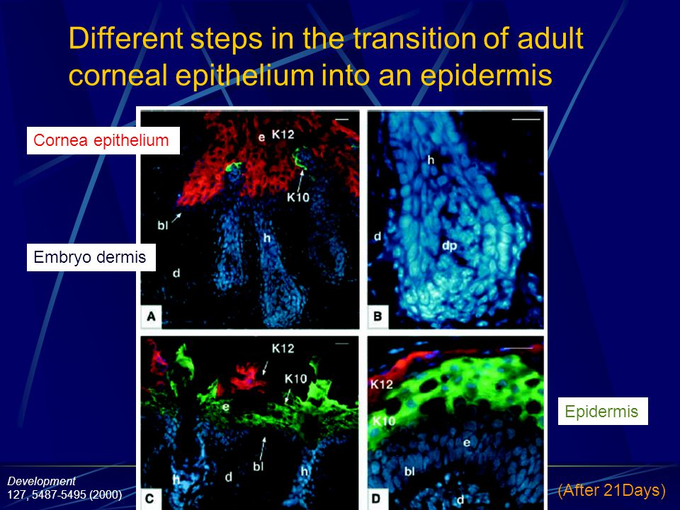 Different steps in the transition of adult corneal epithelium into an epidermis