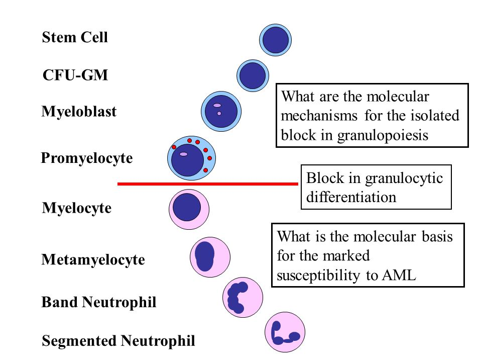 Stem Cell CFU-GM. What are the molecular mechanisms for the isolated block in granulopoiesis. Myeloblast.