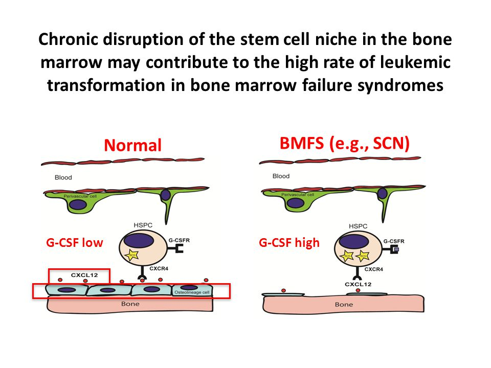 Chronic disruption of the stem cell niche in the bone marrow may contribute to the high rate of leukemic transformation in bone marrow failure syndromes