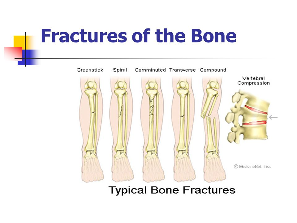 Fractures of the Bone