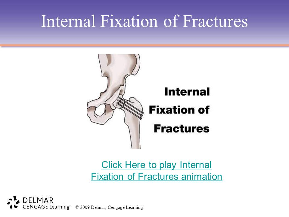 Internal Fixation of Fractures