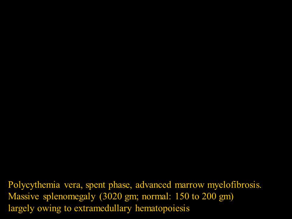 Polycythemia vera, spent phase, advanced marrow myelofibrosis.