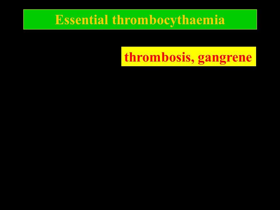 Essential thrombocythaemia