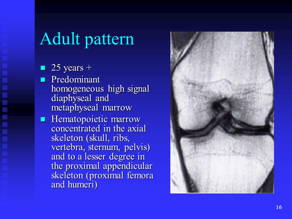 Adult pattern 25 years + Predominant homogeneous high signal diaphyseal and metaphyseal marrow.