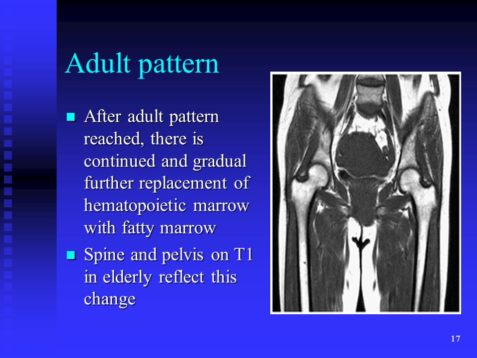 Adult pattern After adult pattern reached, there is continued and gradual further replacement of hematopoietic marrow with fatty marrow.