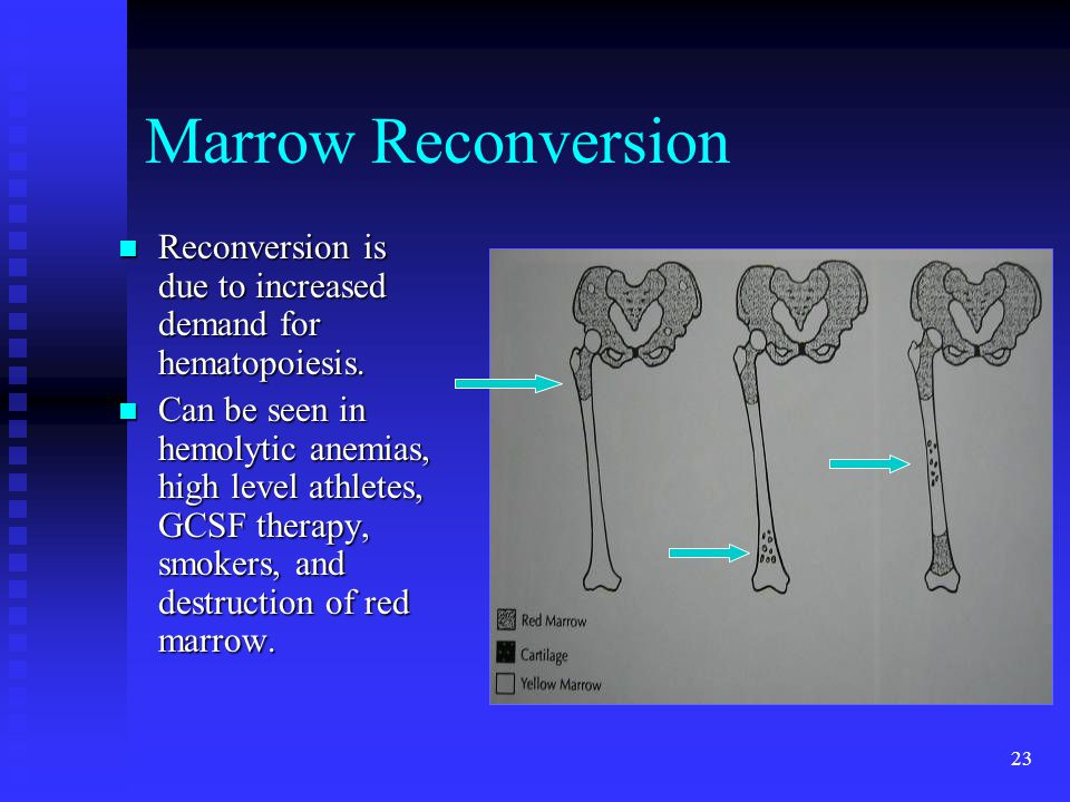Marrow Reconversion Reconversion is due to increased demand for hematopoiesis.