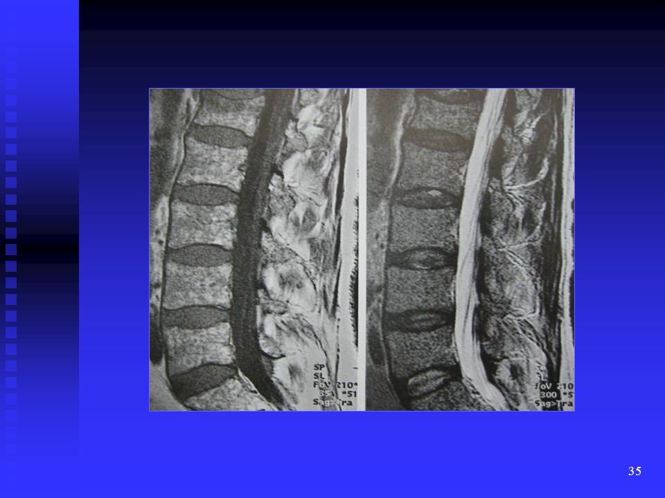 This is a T1W and FSE T2W sagittal images of the lumbar spine