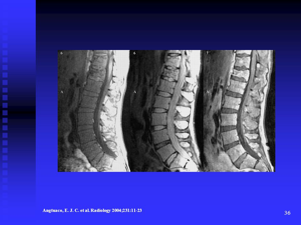 Diffuse marrow involvement in lumbar spine