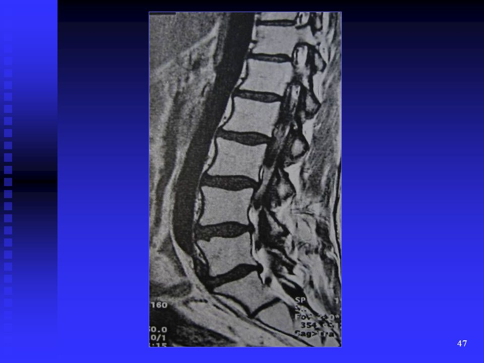 This is a T1W sagittal lumbar spine demonstrating abnormal diffuse distribution of high signal intensity marrow, which is similar in intensity to fat.