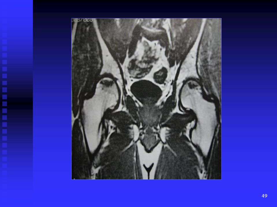 This is a T1W coronal view of the pelvis demonstrating diffuse abnormal distribution of high T1 signal intensity marrow.