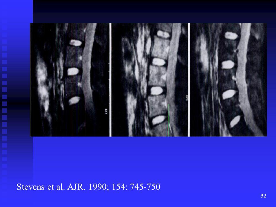 PreRx, 3 days, 46 days STIR demonstrating acute edema early followed by decreased signal later