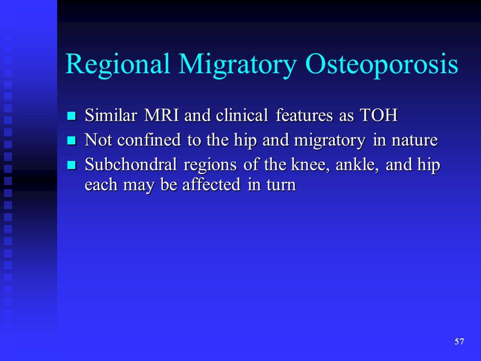 Regional Migratory Osteoporosis