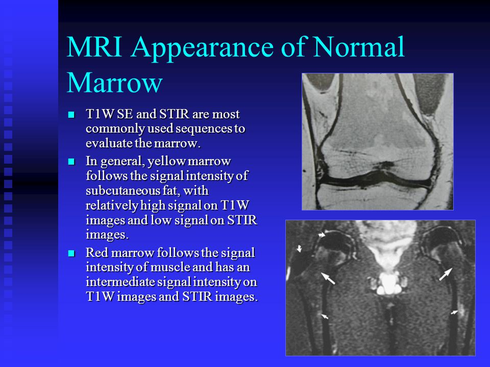 MRI Appearance of Normal Marrow