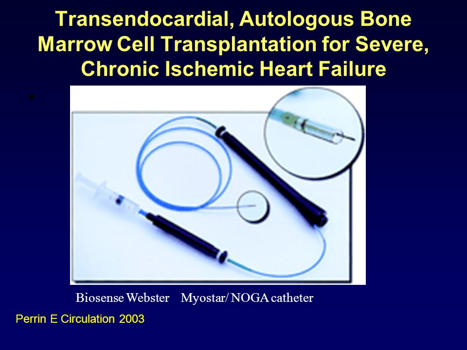 Transendocardial, Autologous Bone Marrow Cell Transplantation for Severe, Chronic Ischemic Heart Failure