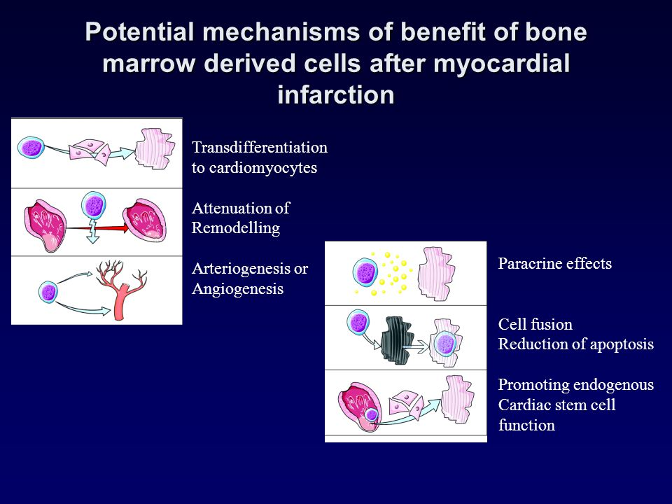 Potential mechanisms of benefit of bone marrow derived cells after myocardial infarction