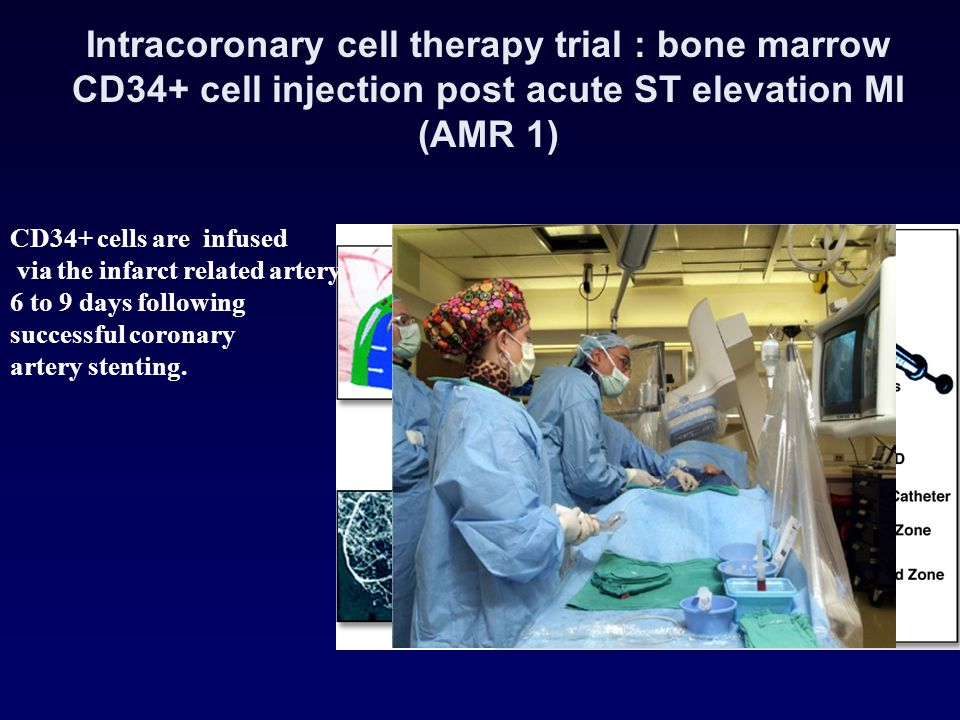 Intracoronary cell therapy trial : bone marrow CD34+ cell injection post acute ST elevation MI (AMR 1)