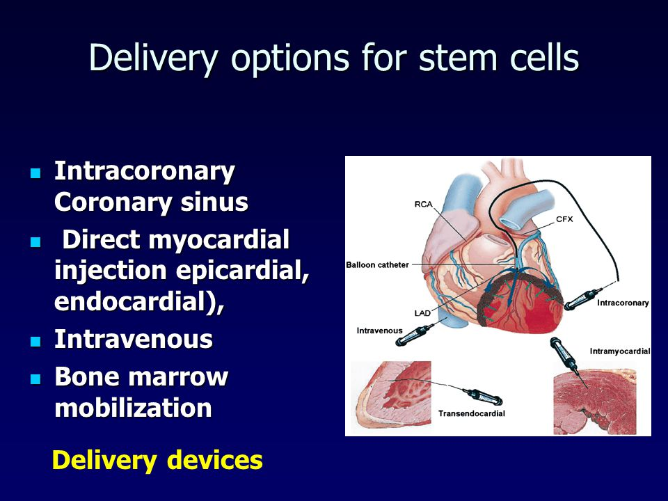 Delivery options for stem cells