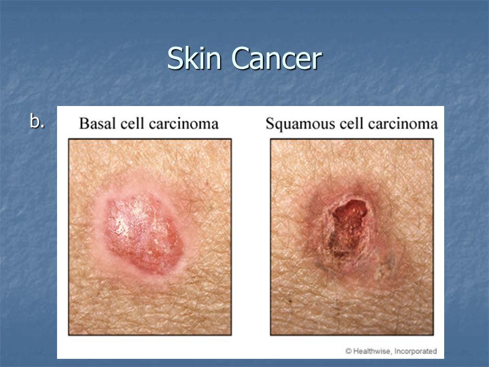 Skin Cancer b.