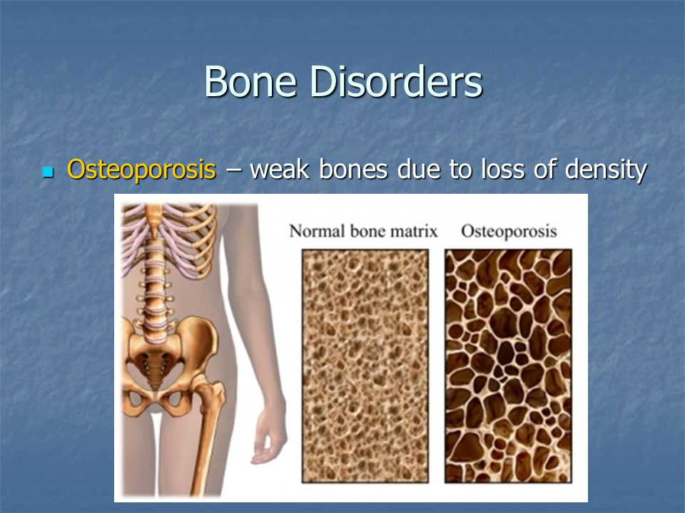 Bone Disorders Osteoporosis – weak bones due to loss of density