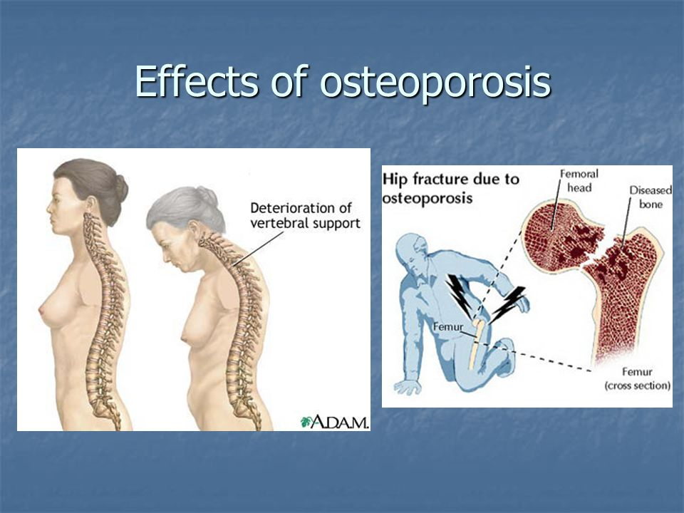 Effects of osteoporosis
