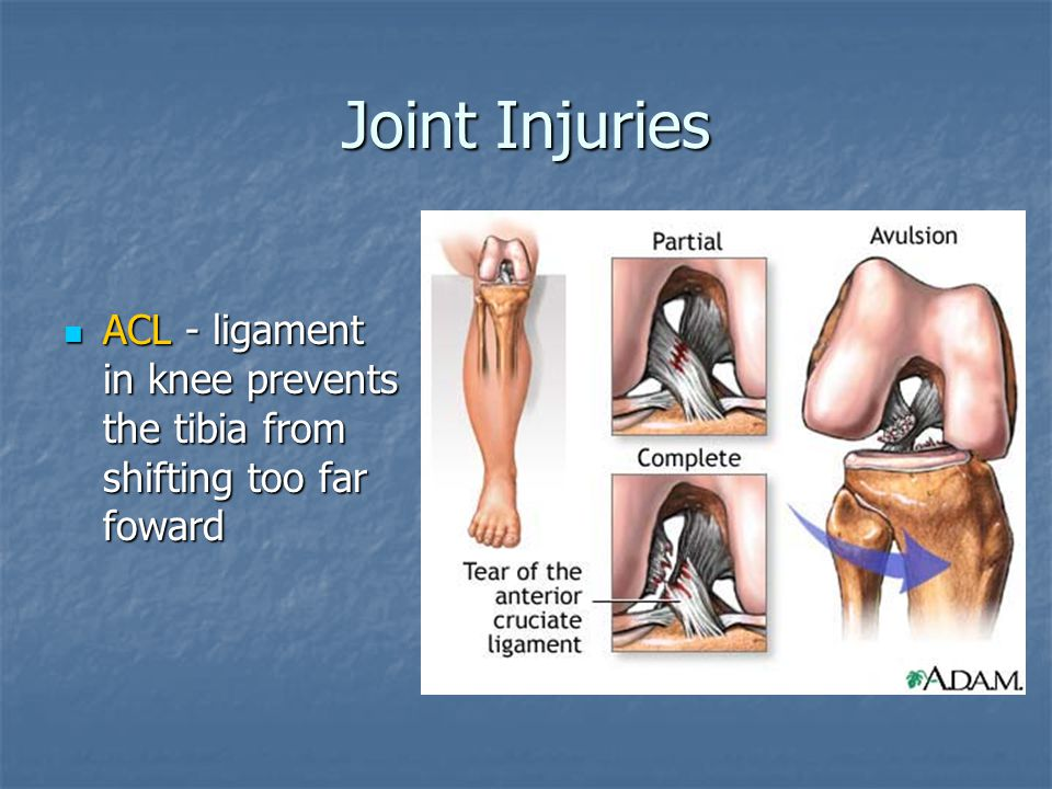 Joint Injuries ACL - ligament in knee prevents the tibia from shifting too far foward