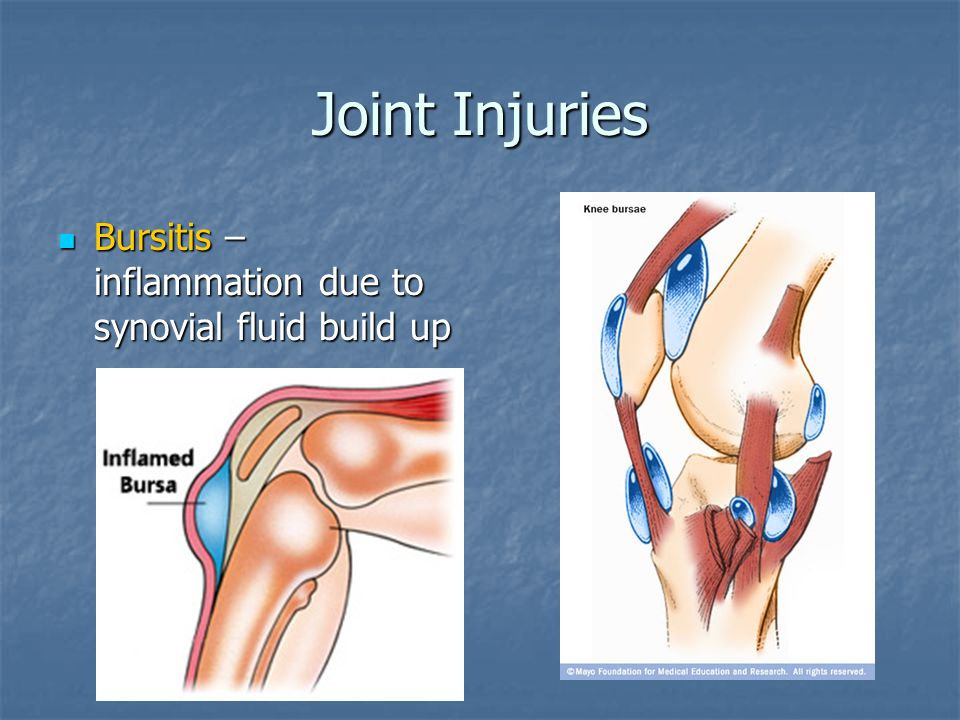 Joint Injuries Bursitis – inflammation due to synovial fluid build up