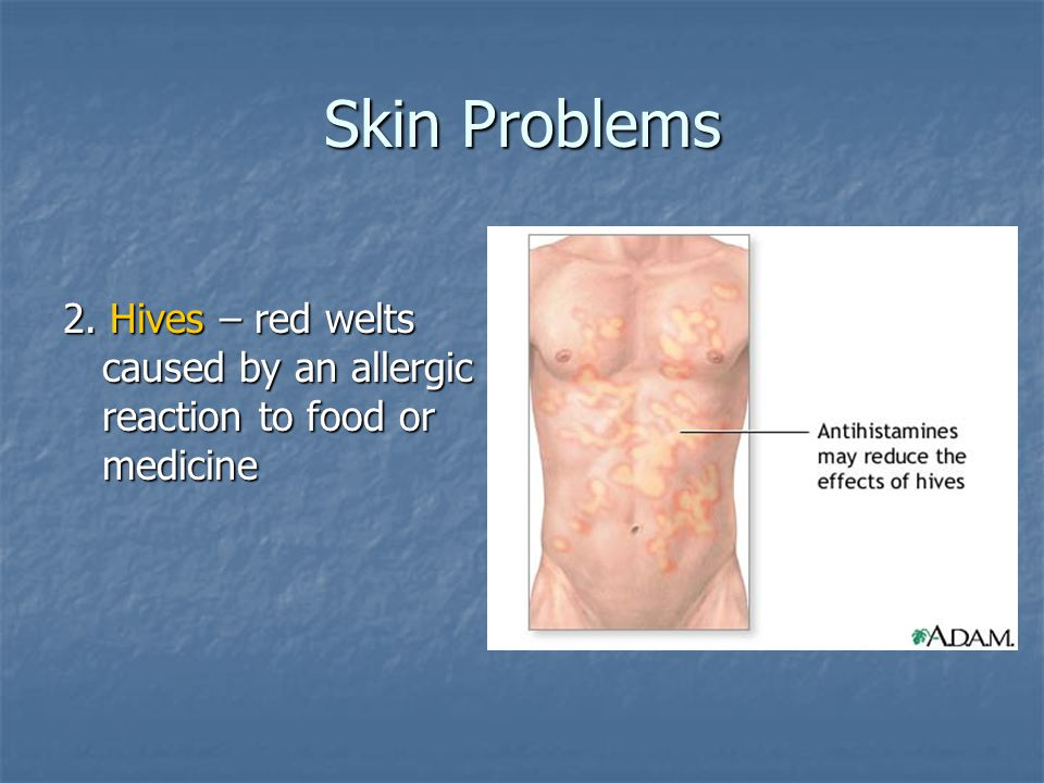 Skin Problems 2. Hives – red welts caused by an allergic reaction to food or medicine