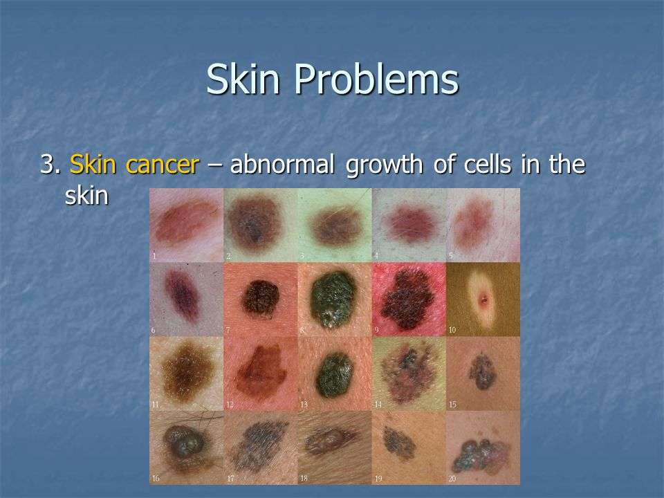 Skin Problems 3. Skin cancer – abnormal growth of cells in the skin