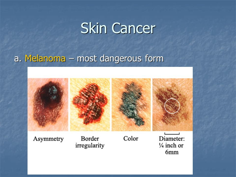 Skin Cancer a. Melanoma – most dangerous form