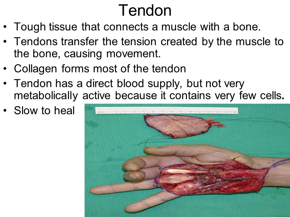Tendon Tough tissue that connects a muscle with a bone.