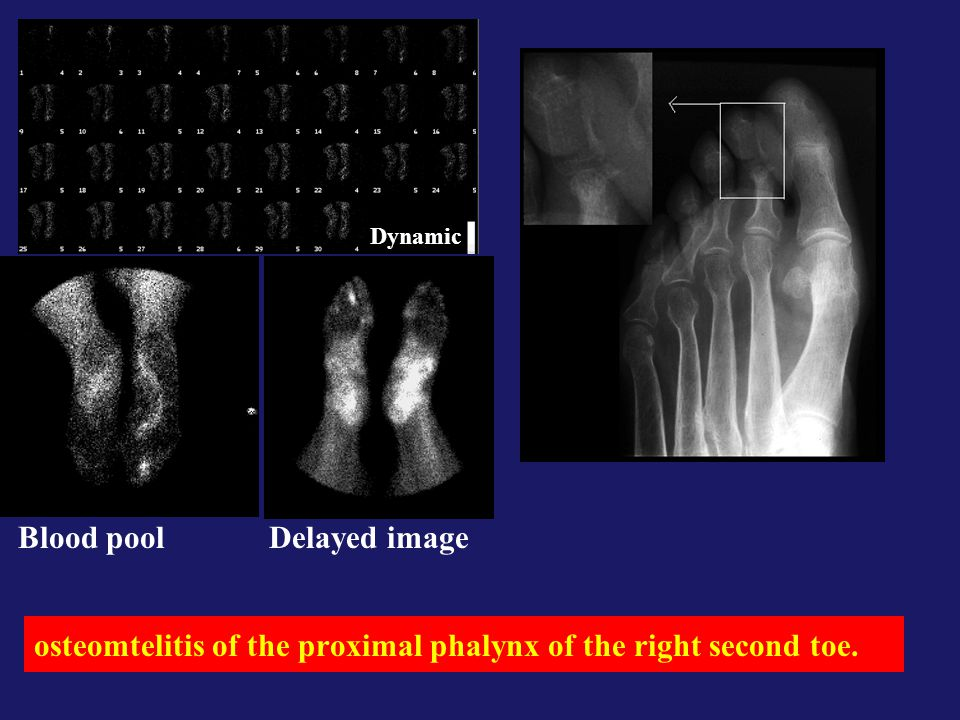osteomtelitis of the proximal phalynx of the right second toe.