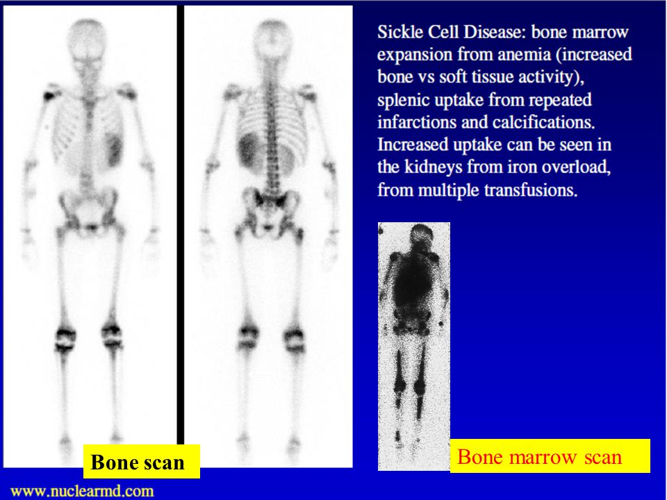 Bone marrow scan Bone scan