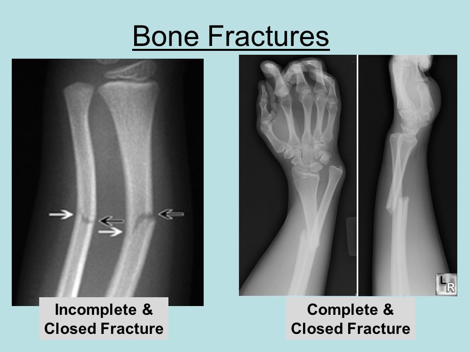 Incomplete & Closed Fracture Complete & Closed Fracture