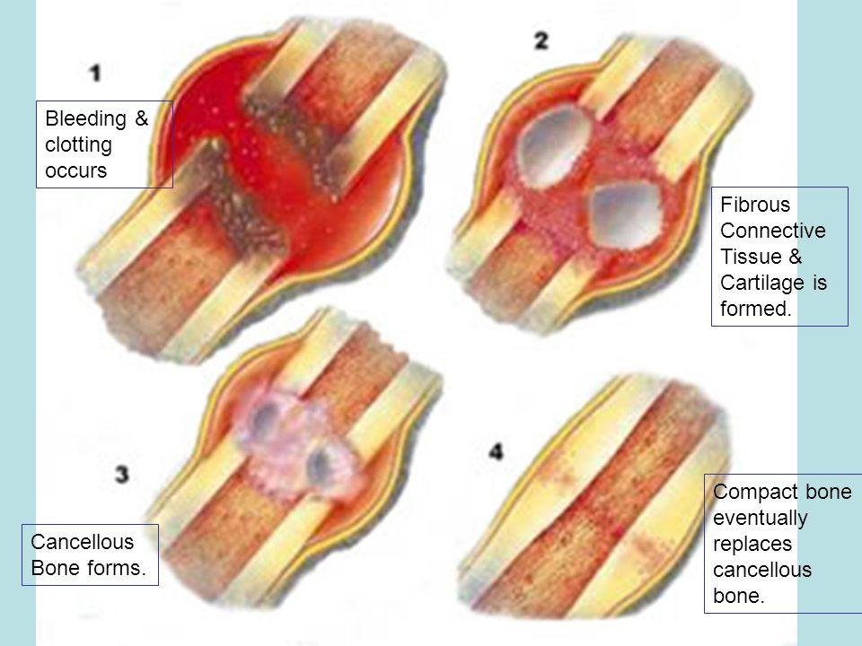 Bleeding & clotting occurs
