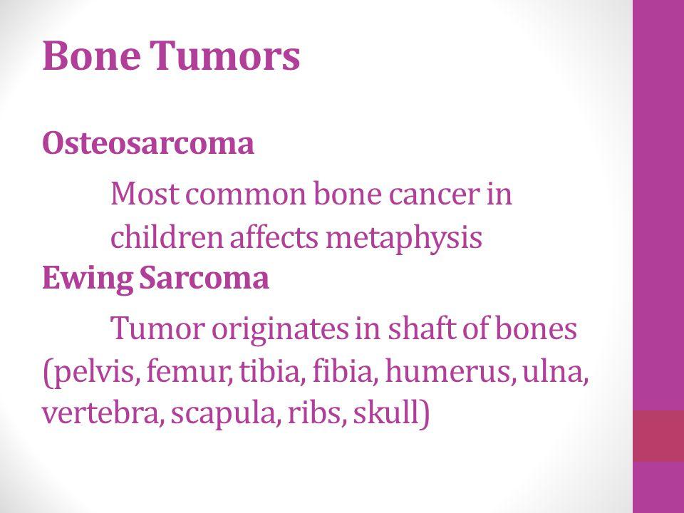 Bone Tumors Osteosarcoma. Most common bone cancer in