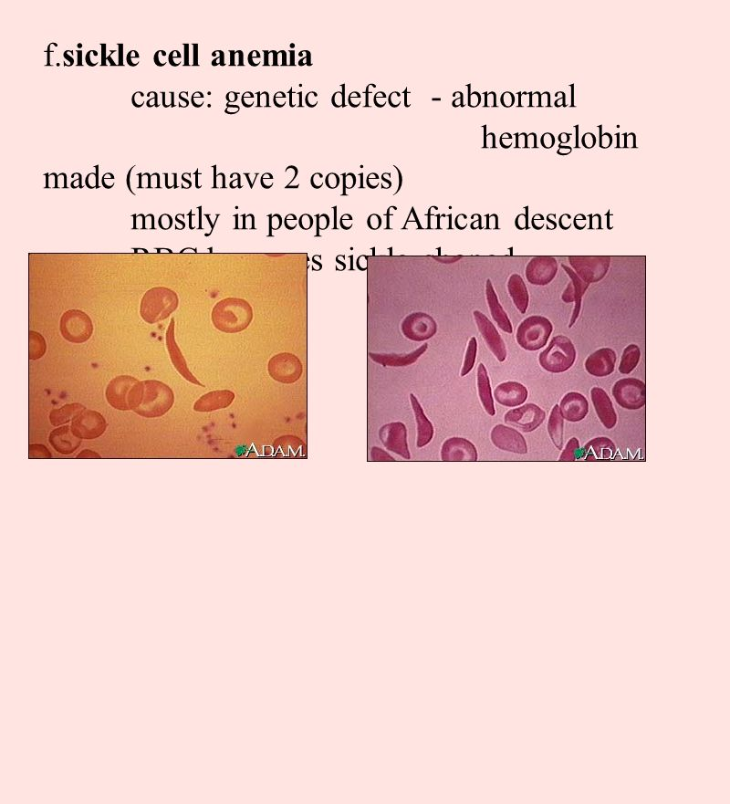 f.sickle cell anemia cause: genetic defect - abnormal hemoglobin made (must have 2 copies) mostly in people of African descent.