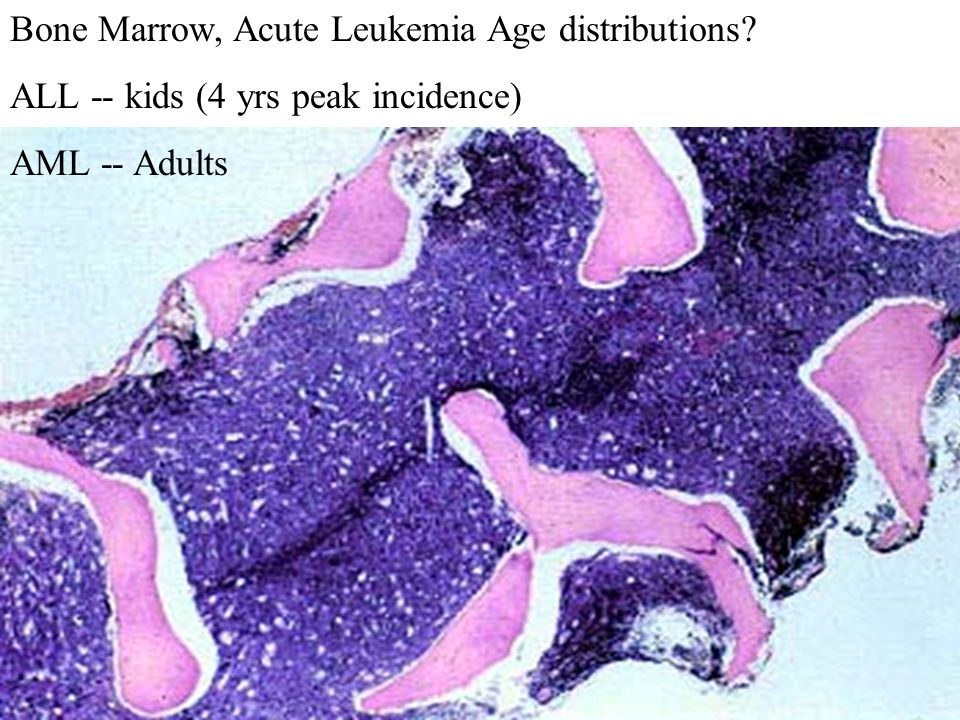 Bone Marrow, Acute Leukemia Age distributions