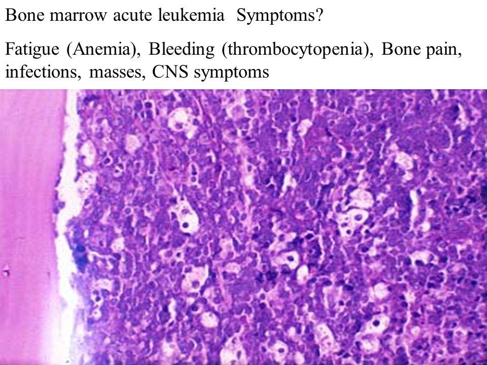 Bone marrow acute leukemia Symptoms