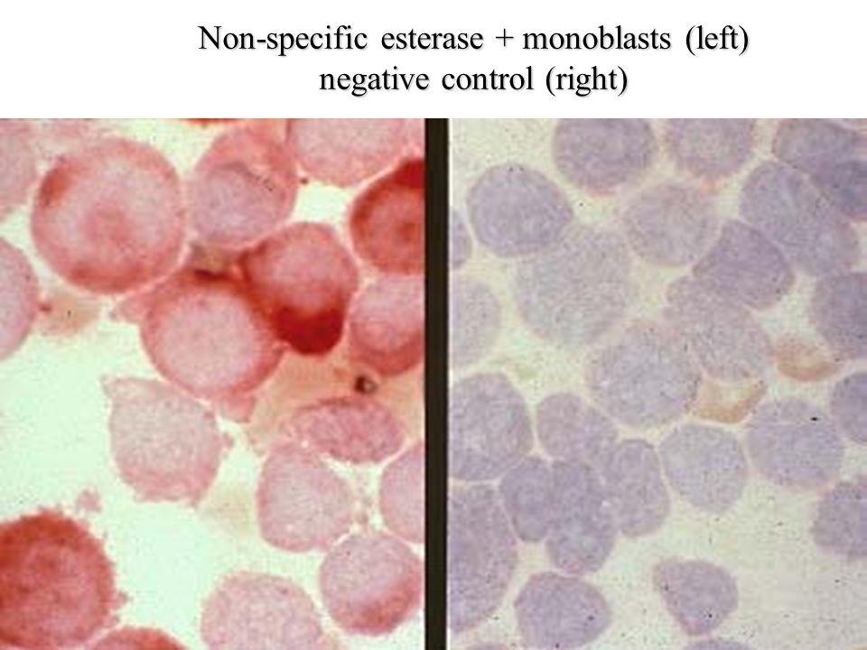 Non-specific esterase + monoblasts (left) negative control (right)