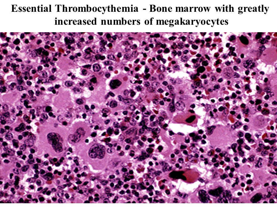 Essential Thrombocythemia - Bone marrow with greatly
