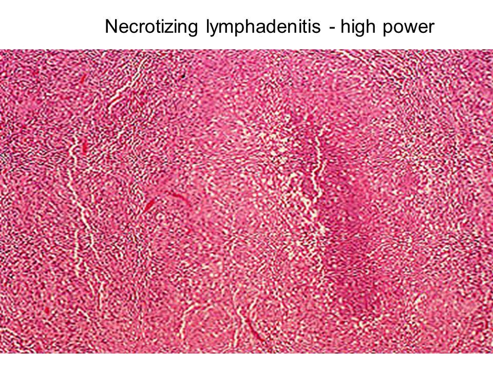 Necrotizing lymphadenitis - high power
