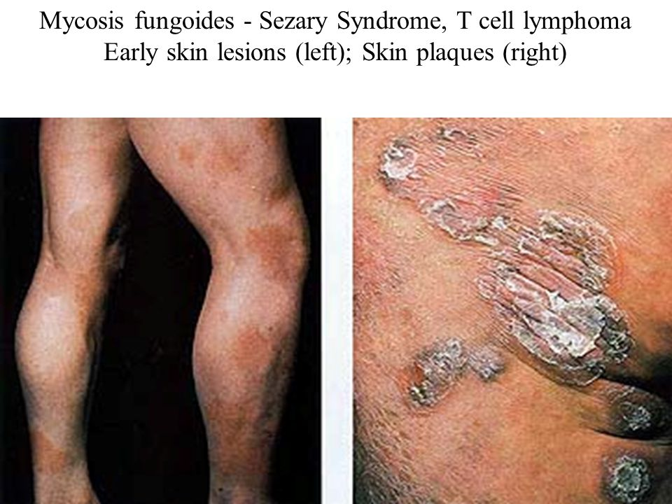 Mycosis fungoides - Sezary Syndrome, T cell lymphoma