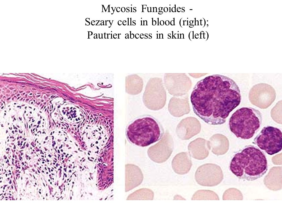 Sezary cells in blood (right); Pautrier abcess in skin (left)