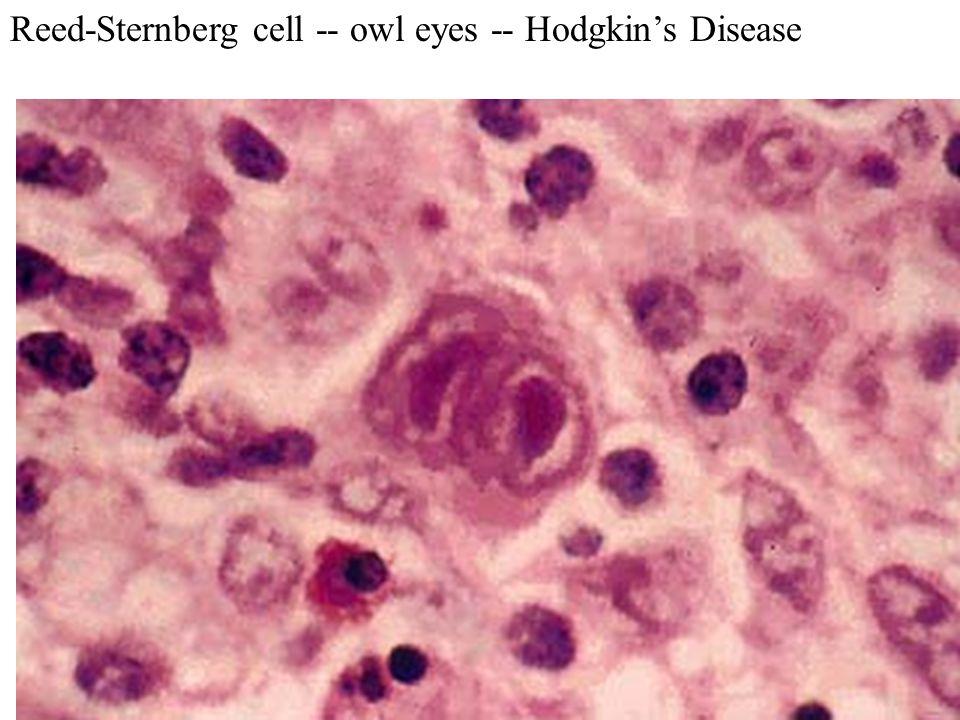 Reed-Sternberg cell -- owl eyes -- Hodgkin's Disease