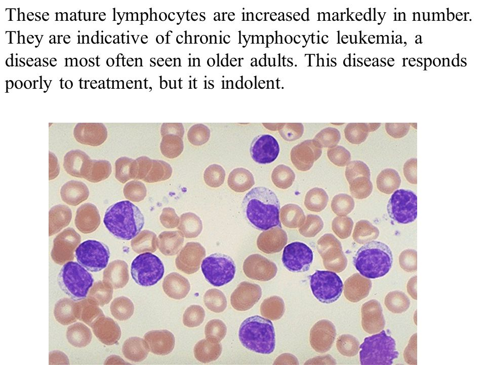 These mature lymphocytes are increased markedly in number