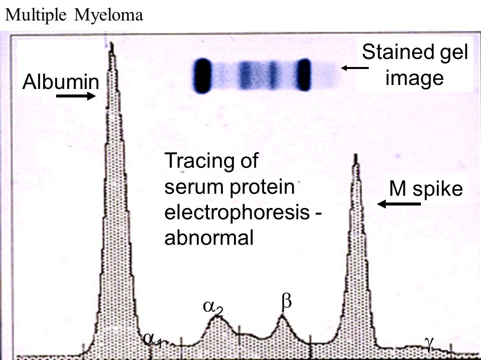 Stained gel image Albumin Tracing of serum protein electrophoresis -