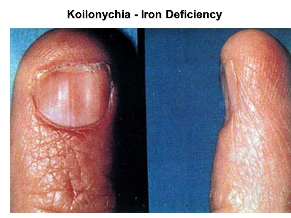 Koilonychia - Iron Deficiency